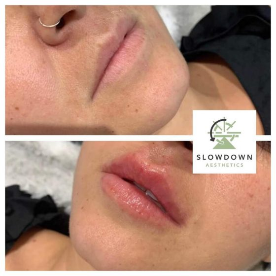 Sarah Salloway Lip Filler
